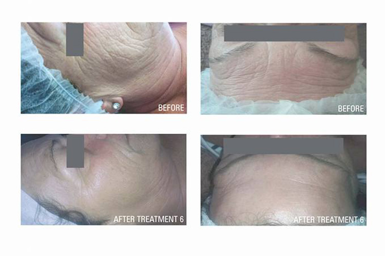 Collagen Induction Treatment